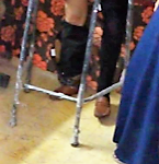 IWC of Alexandria Sporting offering an artificial limb to a diabetic patient.